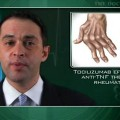 Tocilizumab effective after anti-TNF therapy fails in rheumatoid arthritis