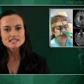 CPAP reduces excess death risk in stroke patients with obstructive sleep apnea