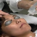 Non-Surgical Aesthetic Lasers