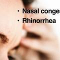 Sinus disease does not cause headaches