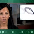 Cardiac Stent Gains Approval with Conditions