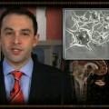 From VerusMed Neurology  January 30, 2008