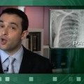 No Benefit with Addition of Sorafenib to Chemo Regimen in NSCLC