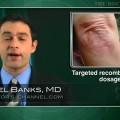Skin manifestations of psoriatic arthritis respond best to twice weekly etanercept