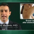 Prophylactic mastectomy may slightly improve survival in young breast cancer patients