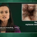 Endoscopic resection for Barrett's esophagus usually avoids surgery