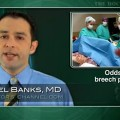 Breech presentations likely to recur