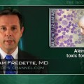 Alemtuzumab Too Toxic for CLL Therapy