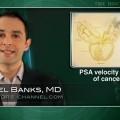 PSA Velocity Not Predictor of Cancer Post Biopsy