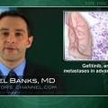 Gefitinib, erlotinib may slow CNS metastases in advanced lung cancer