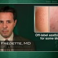 Azathioprine seen useful for some dermatologic conditions