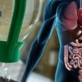 Noradrenaline a cost-effective option for type 1 hepatorenal syndrome