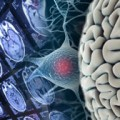 Amantadine accelerates recovery of cognition after traumatic brain injury