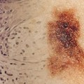 Vast majority of patients with thin melanomas alive at 20 years: study