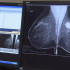 Better Outcomes for Older Women after Receiving Whole Breast Irradiation Compared to Brachytherapy