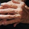 Hand surgery helpful for RA associated deformities