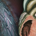 Ranolazine may have a role in elective PCI, pilot study hints