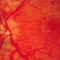 Diabetic macular edema risk seen with thiazolidinediones