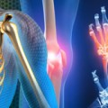 Lipid lowering effective in inflammatory joint disease
