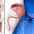 Pelvic plexus block effective for prostate biopsy-related pain