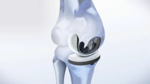Stem Cell Therapy May Revolutionize Knee Replacements