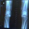 Vitamin D Shows No Major Effect on Pain or Slowing Progression of Knee Osteoarthritis