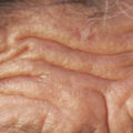 Winning The War Against Wrinkles