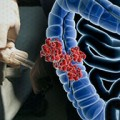Survival After Colorectal Cancer Surgery Better with Peridural Analgesia