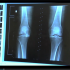 Repeat Bone Mineral Density Tests Did Not Predict Future Fracture Risk