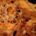Mixed Results Seen with Tivozanib in Metastatic Renal Cell Carcinoma
