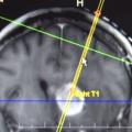 MRI-Guided Gene Therapy Advances Glioblastoma Treatment
