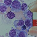 Pomalidomide-Dexamethasone Beneficial in Refractory Multiple Myeloma