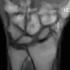 New MRI Technique Sheds Light on Complex Wrist Motion