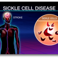 Can Bone Marrow Transplants Improve Outcomes for Adults with Sickle Cell Disease?