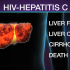 New Interferon-Free Medications Successfully Treat Hepatitis C in Patients with HIV