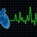 Post-Surgery Abnormal Heart Rhythm Linked to Increased Stroke Risk