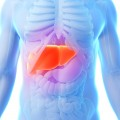 "Hepatitis C Soon to Become ""A Rare Disease"" in U.S."