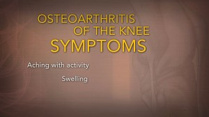Top 5 Symptoms and Treatments for Osteoarthritis of the Knee