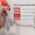 The C-Pulse Heart Assist Device: A Less Invasive Treatment for Heart Failure