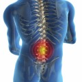 Researchers Successfully Identify Common Causes of Back Pain