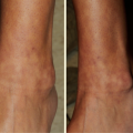 25-Year-Old Female with Asymptomatic Eruption on Both Lower Legs