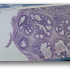 Study Examines Diagnostic Accuracy of Pathologists Interpreting Breast Biopsies