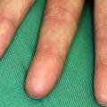 Woman's Fingerprints Get Erased After a Rare Medication Side Effect