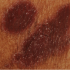 35-Year-Old Male with Itchy Eruption on Groin & Axillae