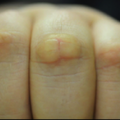 10-Year-Old Boy with Multi-finger Asymptomatic Lesions