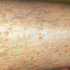 28-Year-Old Male Develops Brittle Nails & Rash on Leg
