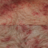 79-Year-Old with Itchy Bumps on Chest