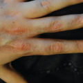 15-Year-Old Boy with Nail Dystrophy from Lesion on Hand