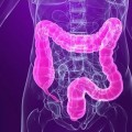 New Drug to Treat Constipation Passes Late Stage Study
