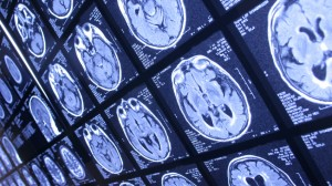 Perception of Painful Memories May be Influenced by Positive Experiences
